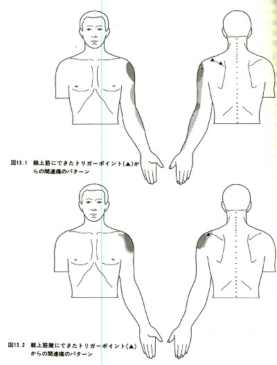 Kyokujyoukinn3